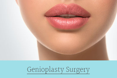 genioplasty surgery