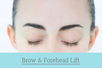 brow and forehead lift