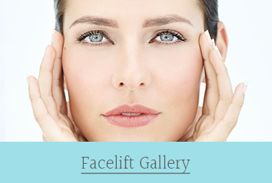facelift gallery