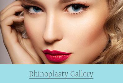 rhinoplasty gallery