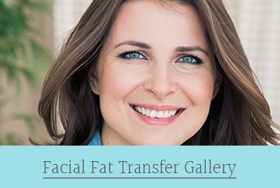 facial fat transfer gallery