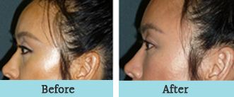 houston facial fat grafting - before and after 1