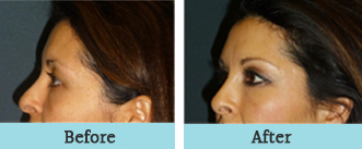 houston facial fat grafting - before and after 2