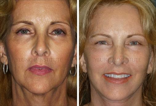 Facelift | Before | Patient 18