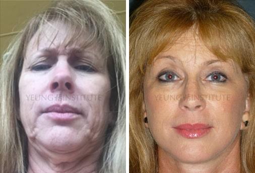 Facelift | Before | Patient 25