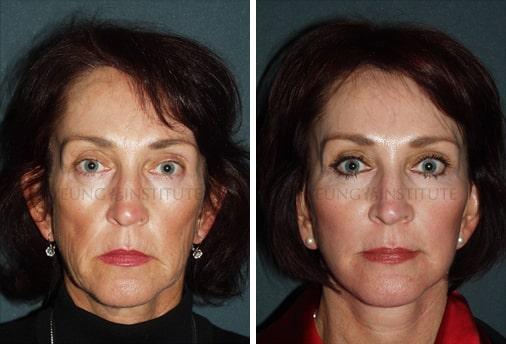 Facelift   Before   Patient 26