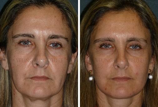 Facelift   Before   Patient 29