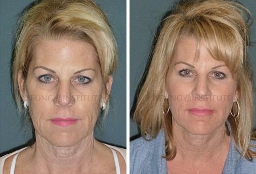 Facelift | Before | Patient 47