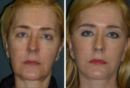 Facelift | Before | Patient 51