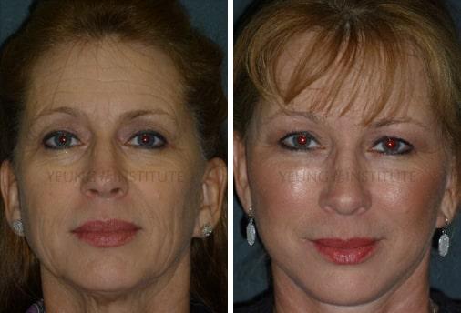 Facelift | Before | Patient 56
