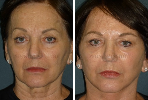 Facelift | Before | Patient 58