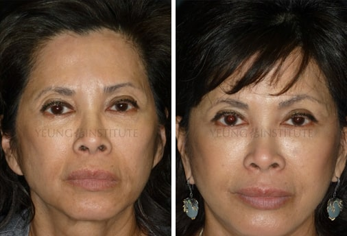 Facelift | Before | Patient 71
