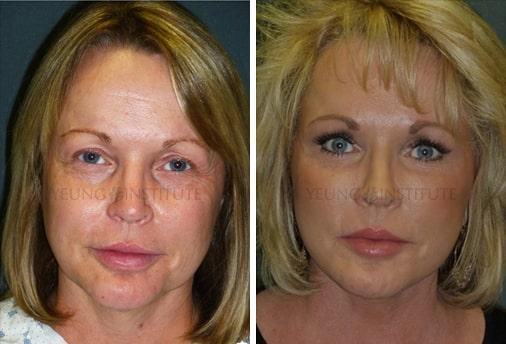 Facelift | Before | Patient 76